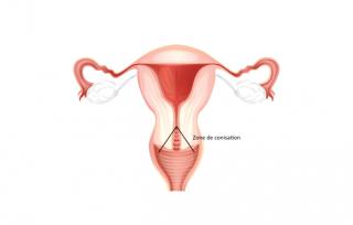 Témoignage : Papillomavirus et conisation du col de l'utérus